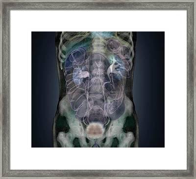 Healthy Abdomen Framed Print by Zephyr
