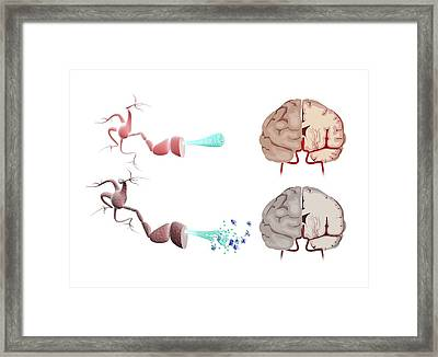 Healthy And Alzheimer's Brains Framed Print by Gunilla Elam