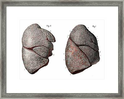 Healthy And Tb Lungs Framed Print by Collection Abecasis