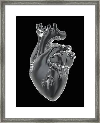 Heart And Coronary Arteries, Artwork Framed Print by Science Photo Library