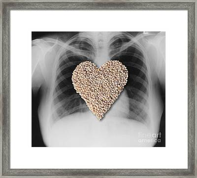 Heart Healthy Food Framed Print by Gwen Shockey