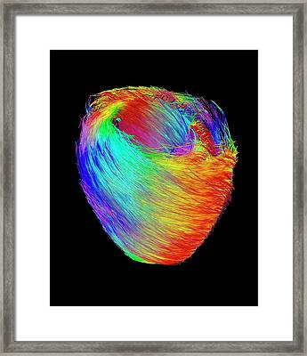 Heart Muscle Fibres Framed Print