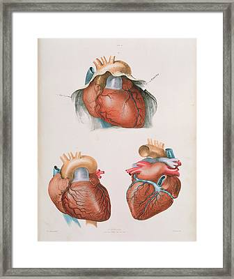 Heart Framed Print by Sheila Terry/science Photo Library