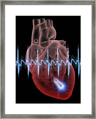Heart With Leadless Cardiac Pacemaker Framed Print