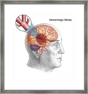 Hemorrhagic Stroke Framed Print by Spencer Sutton