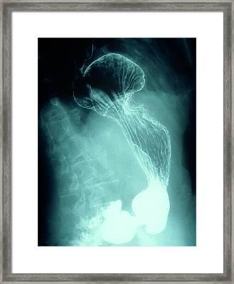 Hiatus Hernia Framed Print