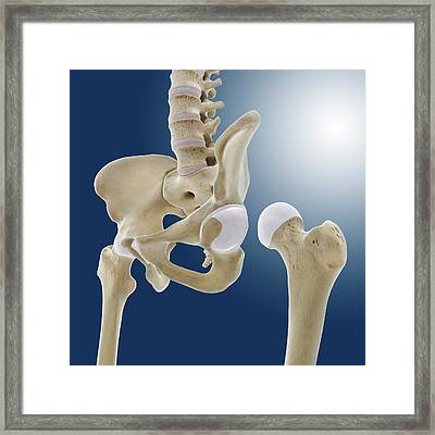 Hip Anatomy Framed Print by Springer Medizin