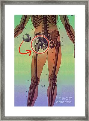 Hip Replacement Framed Print by Dennis D Potokar