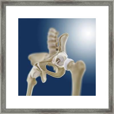 Hip Socket Anatomy Framed Print by Springer Medizin