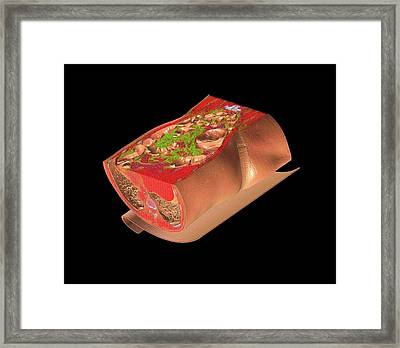 Human Abdomen Framed Print by Anders Persson, Cmiv