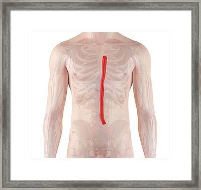 Human Aorta Framed Print by Sciepro