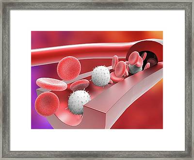 Human Artery With Blood Cells Framed Print