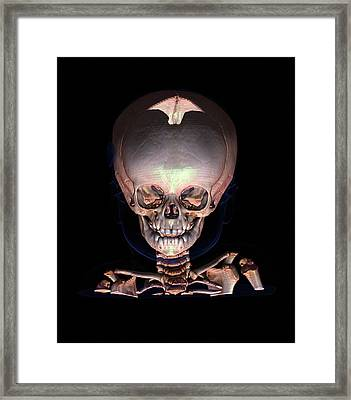 Human Baby's Skull Framed Print by Anders Persson, Cmiv
