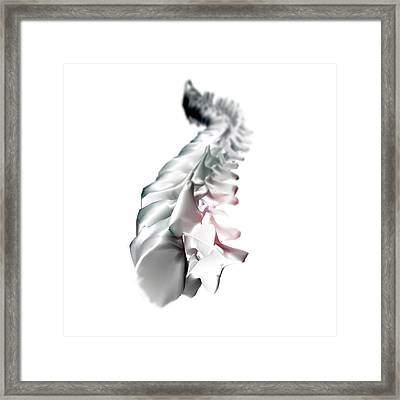 Human Backbone Framed Print by Crown Copyright/health & Safety Laboratory Science Photo Library