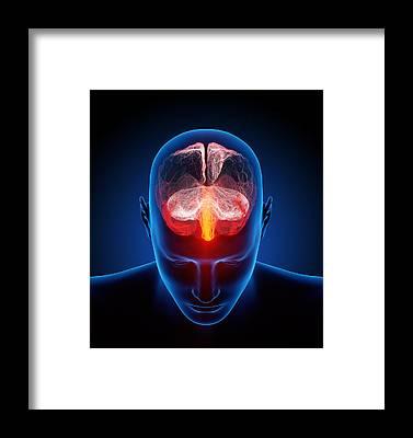 Headache Framed Prints