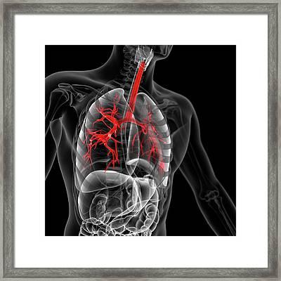 Human Bronchi Framed Print by Sebastian Kaulitzki
