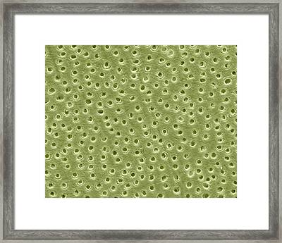 Human Dentine Framed Print by Clouds Hill Imaging Ltd