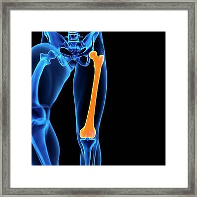 Human Femur Bone Framed Print by Sebastian Kaulitzki