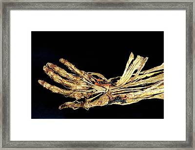 Human Hand Anatomy Framed Print by Patrick Landmann/science Photo Library
