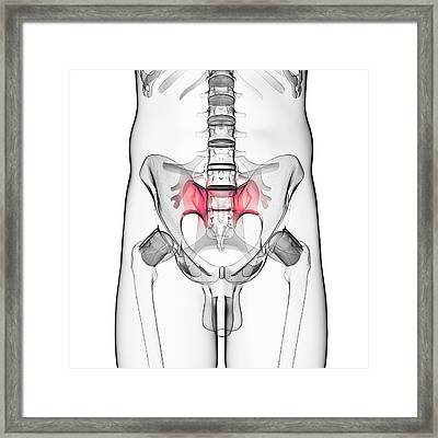 Human Hip Bones Framed Print
