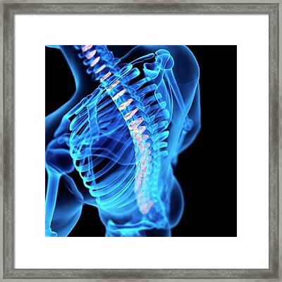 Human Intervertebral Discs Framed Print by Sebastian Kaulitzki