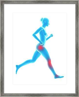 Human Joint Of Runner Framed Print