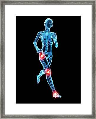 Human Joints Framed Print