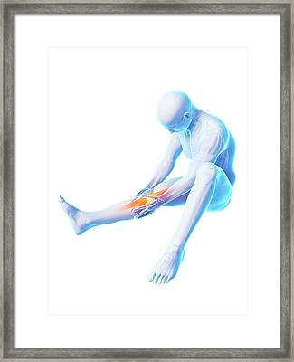 Human Knee Pain Framed Print