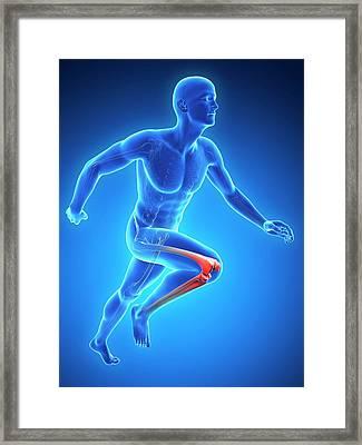 Human Knee Framed Print