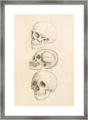 Human Skulls Framed Print by King's College London