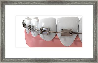 Human Teeth Extreme Closeup With Metal Braces Framed Print by Allan Swart