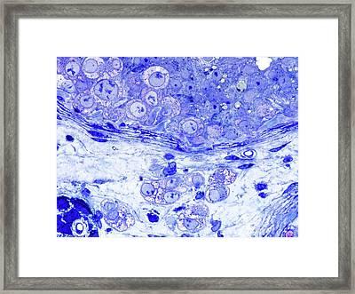 Human Testis Cancer Framed Print