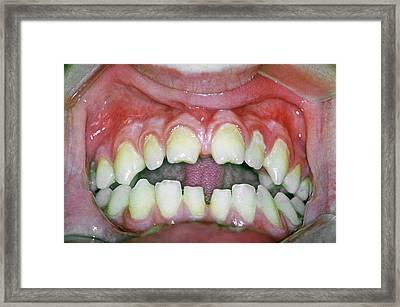 Hutchinson's Teeth Framed Print by Cnri