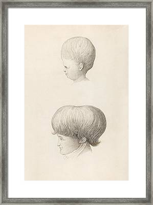 Hydrocephalus In Child And Adult Framed Print by King's College London