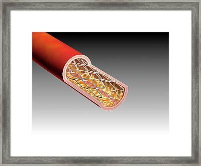 Illustration Of An Arterial Stent Framed Print by Harvinder Singh