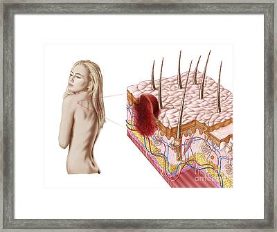 Illustration Of An Atypical Growth Framed Print