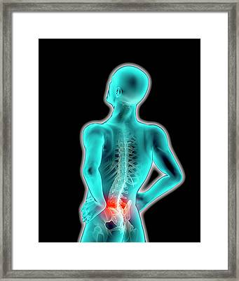 Image Representing A Sore Back On Human Framed Print by Doug Armand