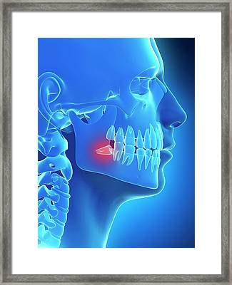Impacted Wisdom Tooth Framed Print