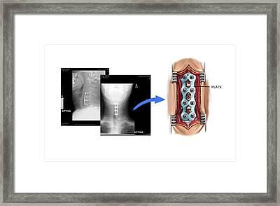 Implanting Metal Plate In Cervical Spine Framed Print