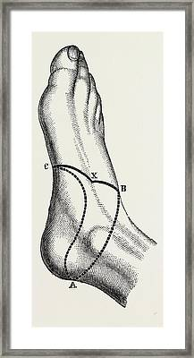 Inner And Outer Sides Of The Right Foot, To Show Framed Print by Litz Collection