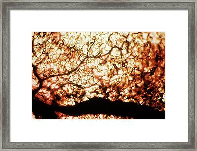 Intestinal Capillaries Framed Print by Pr. E. Tamboise - Cnri