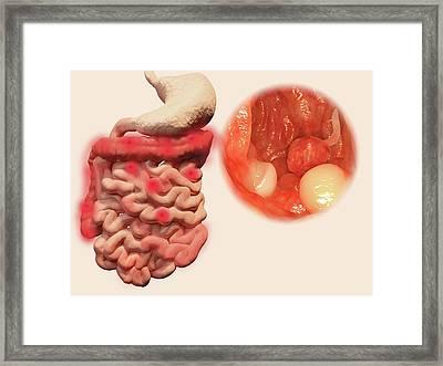 Intestinal Polyps Framed Print by Juan Gaertner