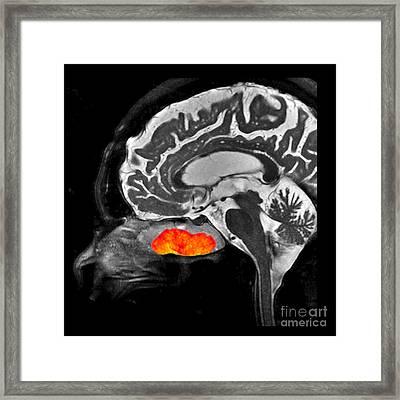 Inverted Papilloma, Mri Framed Print by Living Art Enterprises