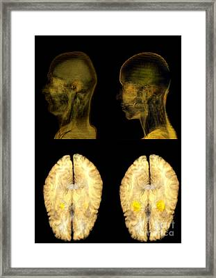 Jealousy Research, Mri Brain Scans Framed Print by Thierry Berrod, Mona Lisa Production