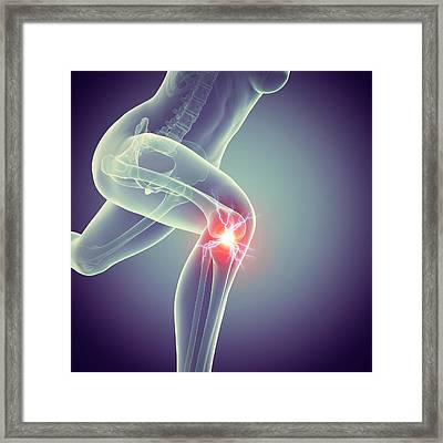 Jogger With Knee Pain Framed Print by Sebastian Kaulitzki