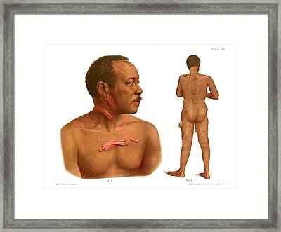 Keloids And Fibromas Framed Print by Us National Library Of Medicine/science Photo Library
