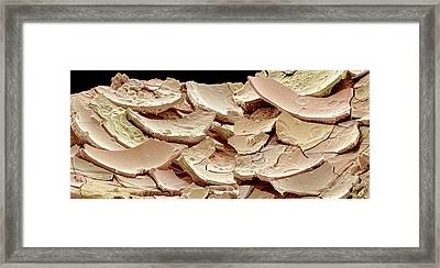 Kidney Stone Framed Print by Susumu Nishinaga