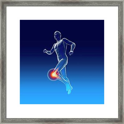 Knee Pain Framed Print