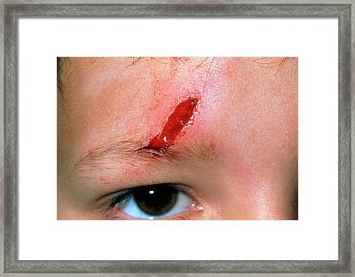Laceration Above The Eye Of A 5 Year Old Boy Framed Print by Dr P. Marazzi/science Photo Library