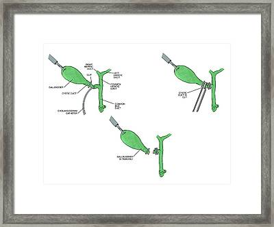 Laparoscopic Gallbladder Removal Surgery Framed Print by John T. Alesi